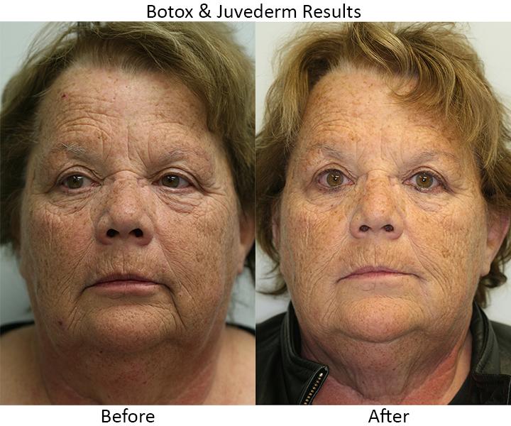 Botox & Juvederm Results #1